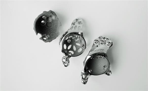 3d-printed-bioceramic-implants-for-bone-repair-enter-market-soon21